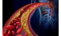 Cum să controlăm nivelul colesterolului. Adevărul despre zahăr şi grăsimi