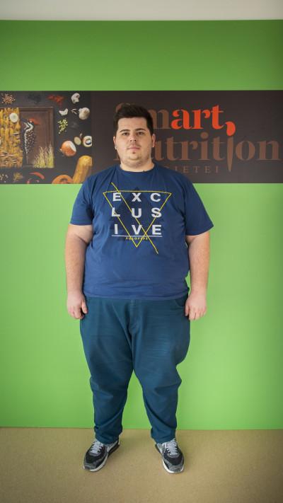 Dieta record Smart Nutrition:  Un tânăr de 24 de ani a slăbit 60 de kilograme fără chirurgie bariatrică