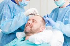 Recapătă-ți încrederea de sine prin procedura de implant de păr, realizată la clinica Dr. Felix